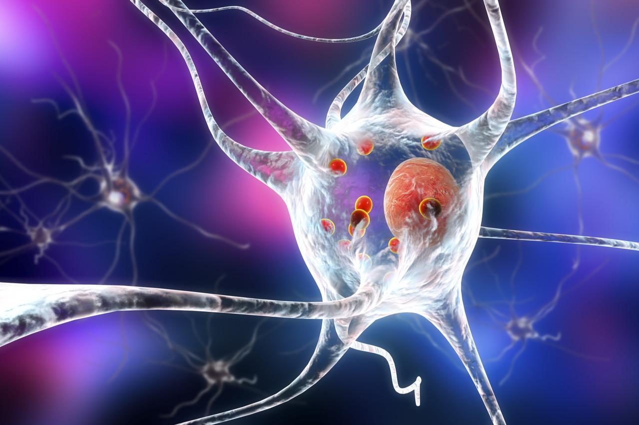 La méthodologie choisie au Luxembourg est avant-gardiste, mais OrganoTherapeutics, qui a déjà breveté une partie de son innovation, s'attend à une concurrence féroce dans le cadre de la lutte contre la maladie de Parkinson. (Photo: Shutterstock)