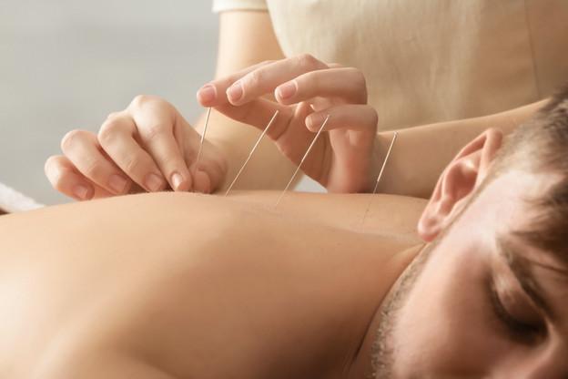 L'acupuncture est tirée de la médecine traditionnelle chinoise et consiste à soulager les maux en stimulant certaines zones du corps. (Illustration: Shutterstock)