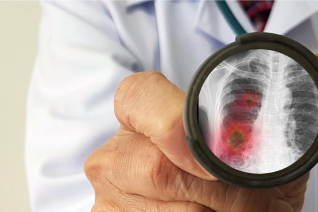 La barre des 100.000personnes infectées a été dépassée ce week-end, dont les quatre cinquièmes se trouvent en Chine. Au Luxembourg, le nombre de cas est monté à cinq dimanche soir. (Photo: Shutterstock)