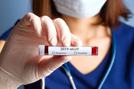 Cette somme servira à financer trois études sur le Covid-19 en cours au Luxembourg. (Photo: Shutterstock)