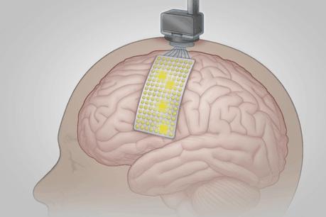 À partir de 128électrodes implantées sur le cerveau d'un patient, les chercheurs ont pu mettre au point un système capable de traduire exactement ce qu'il avait l'intention de dire dans 95% des cas avec un nombre limité de mots. (Photo: New England Journal of Medicine)